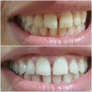 וינטרמן - הבהרת שיניים לפני ואחרי