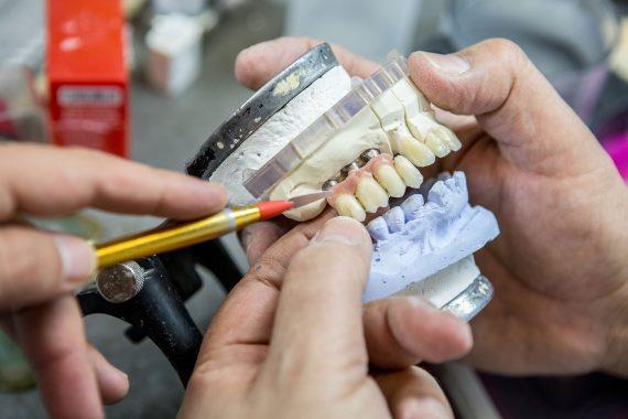 טיפולי חירום - וינטרמן - שתלים, רפואה וטכנאות שיניים בחיפה