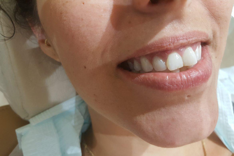 התאמה חוזרת של שן זמנית עד לקליטת השתל