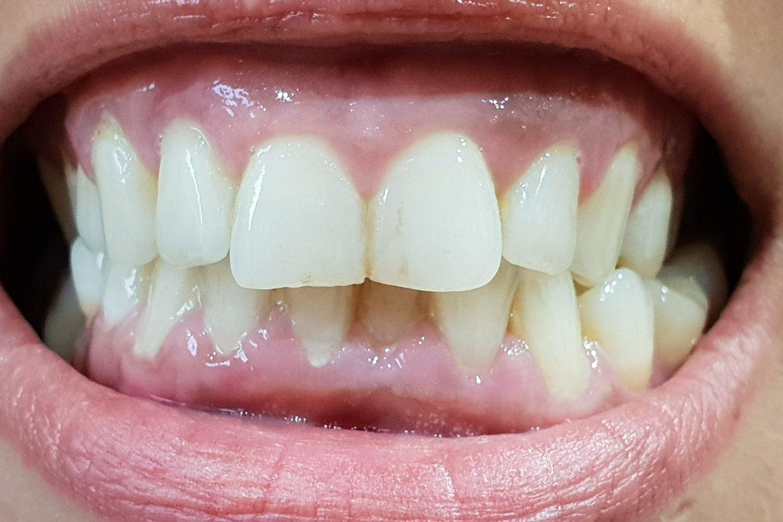 תוצאה סופית - שן מחרסינה מלאה בהתאמת צבע אישית