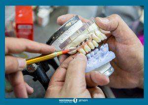 טכנאות שיניים - וינטרמן רפואה וטכנאות שיניים בחיפה