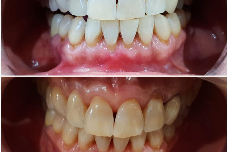 קליניקת וינטרמן - הבהרת שיניים